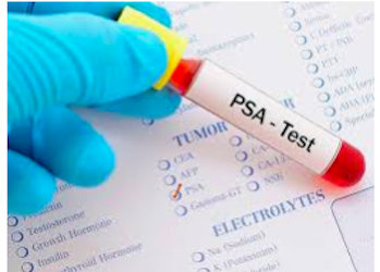 PSA testing: What does it cost? And what's covered?