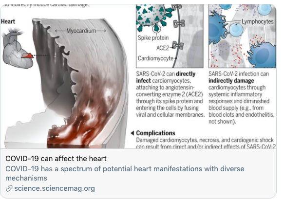 Coronavirus (Covid-19) and the heart: Lingering damage for an uncertain number of patients